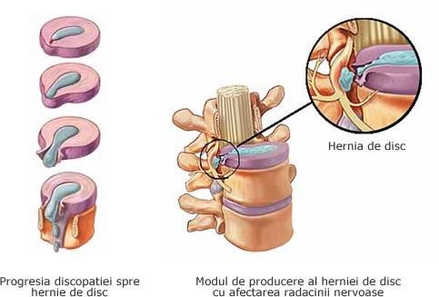 hernie-de-disc