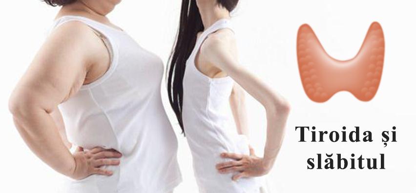 scadere in greutate tiroida